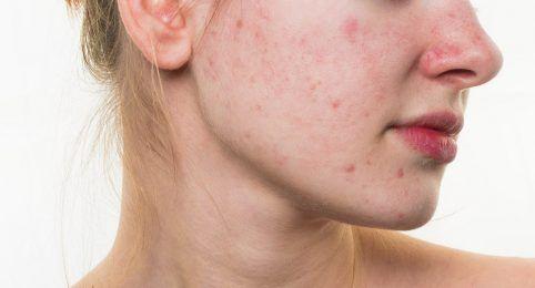 Cicatrizes de Acnes em BH