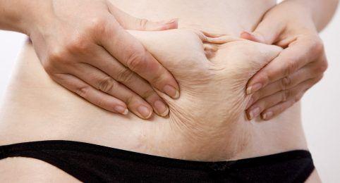 Tratamento para flacidez de pele em BH