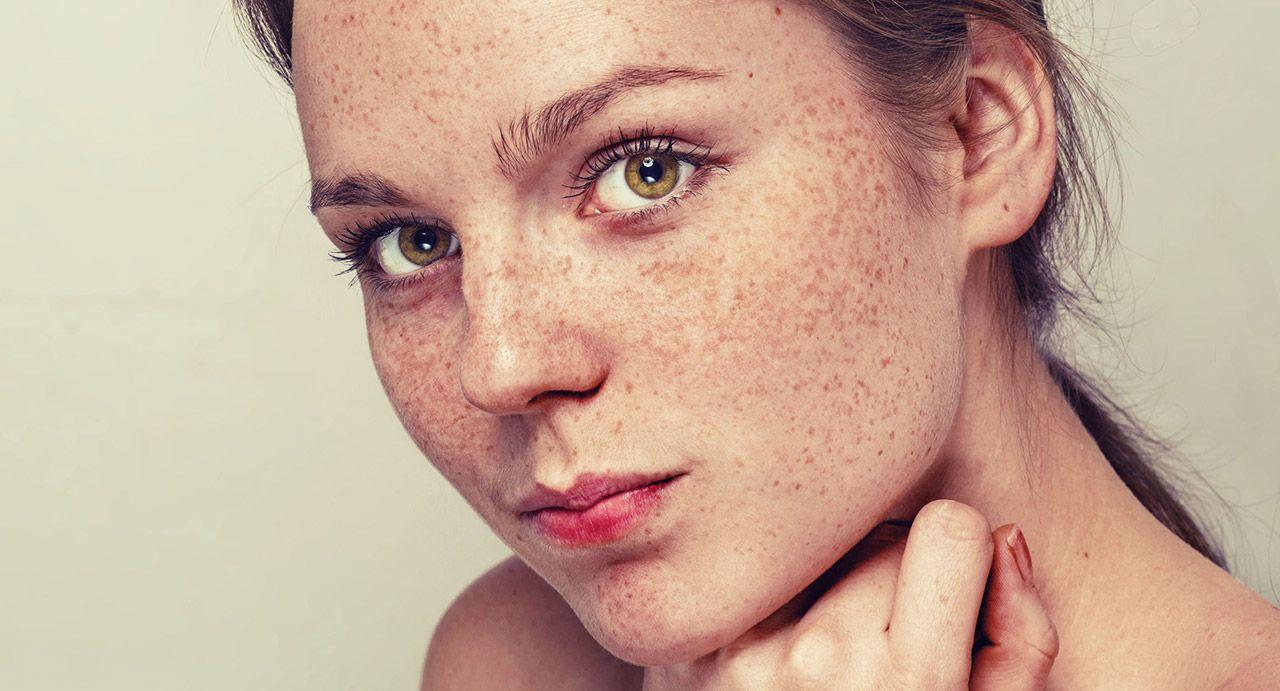 Tratamento para manchas na pele em bh