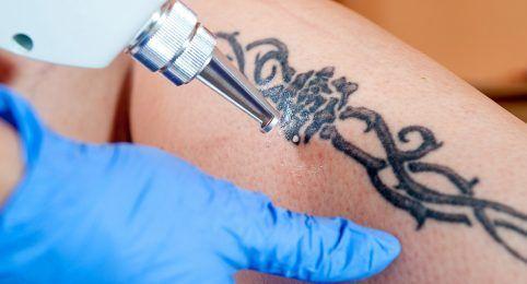 Remoção de tatuagem em bh