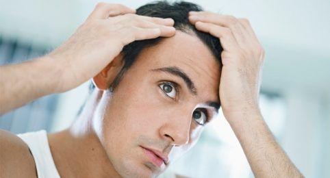 Tratamento de alopecia em BH