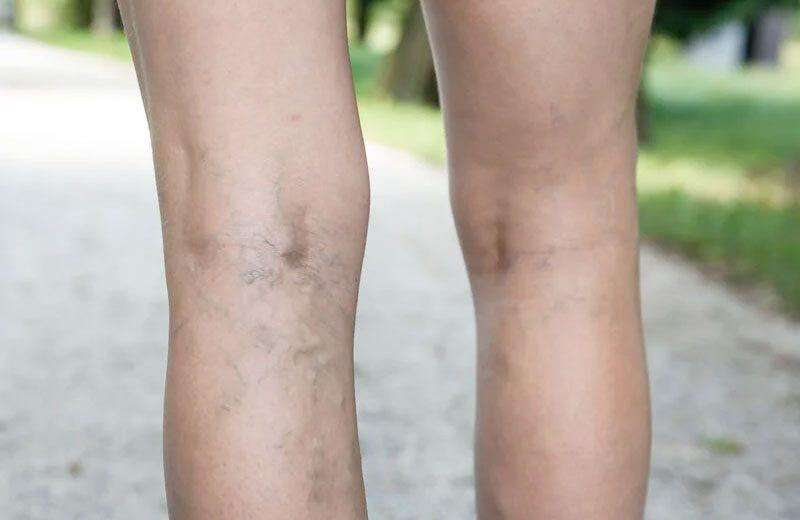 Varizes e vasinhos nas pernas